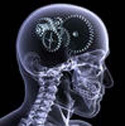 x-ray_of_skull.jpg