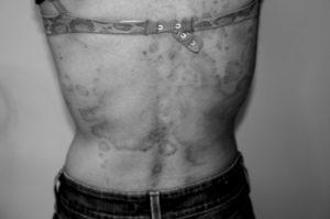psoriasis - after