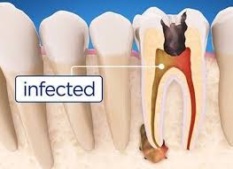 root canals and illness