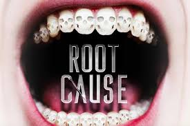 root canals and health